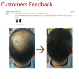Hair Building Keratin Thicker Anti Hair Loss Thickening